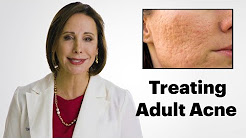 hqdefault - Best Adult Acne Cures