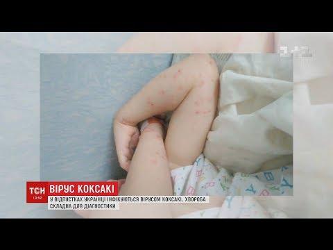 Инфекционист в Нижнем Новгороде. Приём, консультация