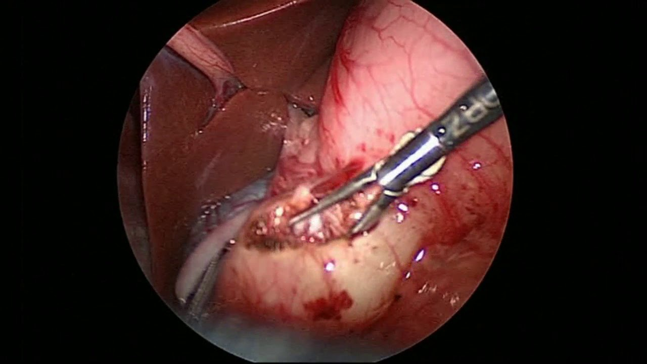 Laparoscopic pyloromyotomy for Infantile Hypertrophic ...