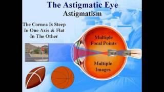 Eyes With Astigmatism