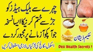 Remove Blackheads in 1 week - Get Rid of Blackheads Instantly - Pimple Popping - Beauty Tips in URDU
