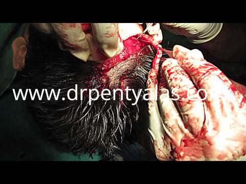 Hair Transplant Surgery Procedure