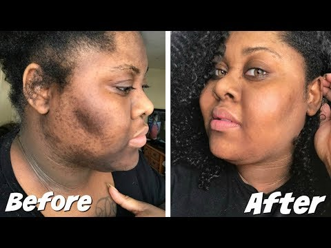 HOW TO GET RID DARK SCARS + HYPERPIGMENTATION