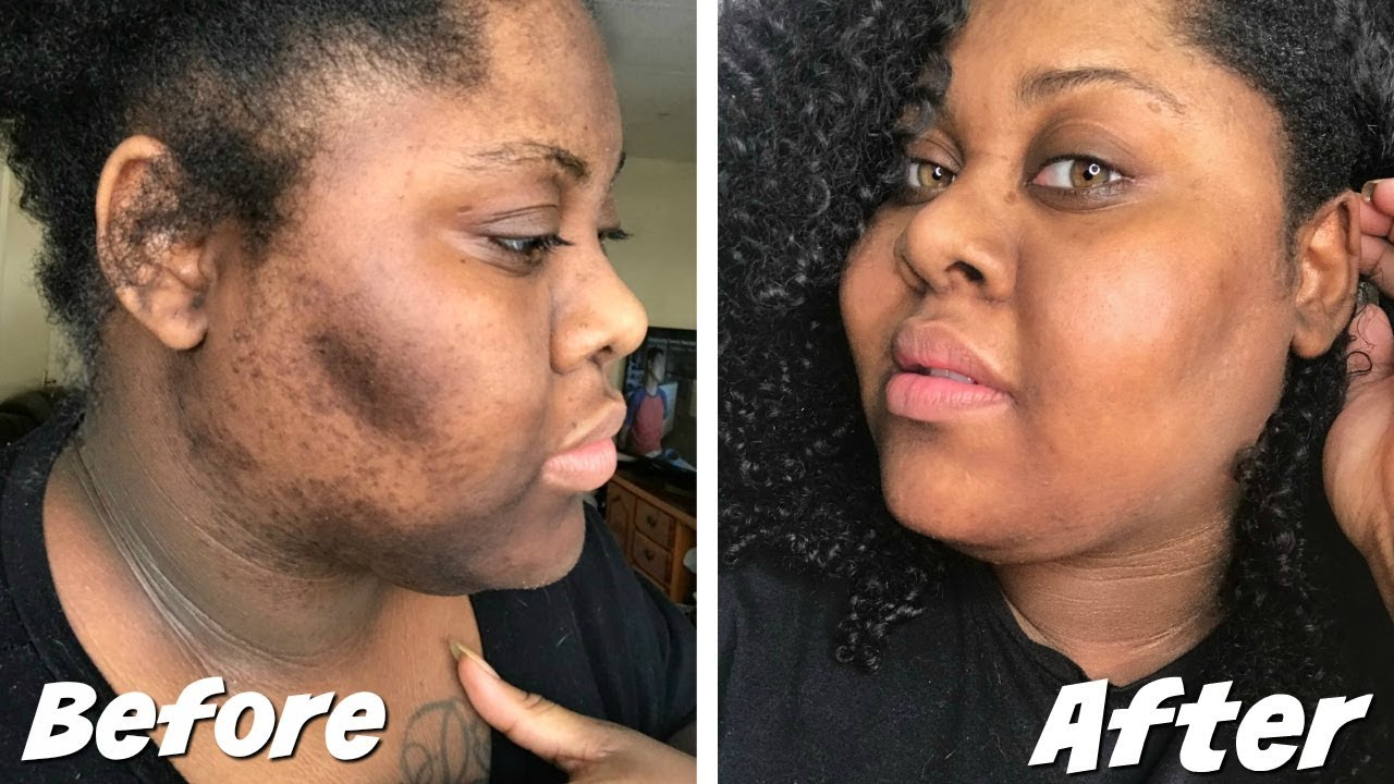 HOW TO GET RID DARK SCARS + HYPERPIGMENTATION - YouTube