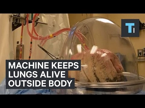 Machine keeps lungs awaiting transplant perfused