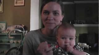 Hemangioma Infant Birthmark
