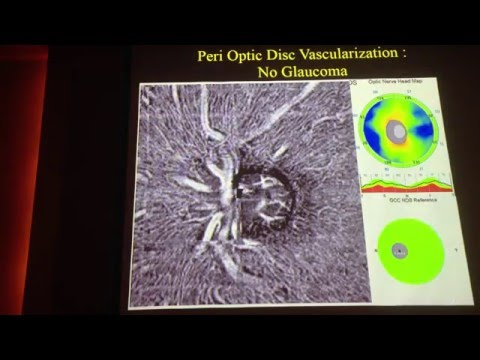 OCT A workshop Sing 2016 OCTA in glaucoma Michel Puech, France