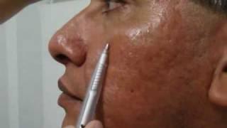 Atenuar cicatrices de acne, marcas de acne ¿Es Posible? - Tratamiento de acne en Lima