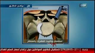 الدكتور | عمليات استئصال وتثبيت الفقرات بالمنظار مع د. يسرى الحميلى