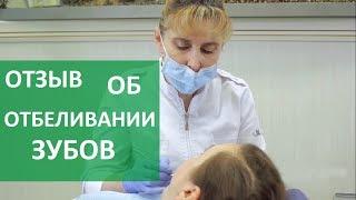 видео Стоматологические клиники России о домашнем отбеливании зубов