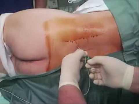 lumbar plexus block spinal anaesthesia