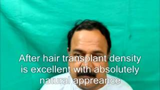 www hairtransplantdelhi com Thumbnail