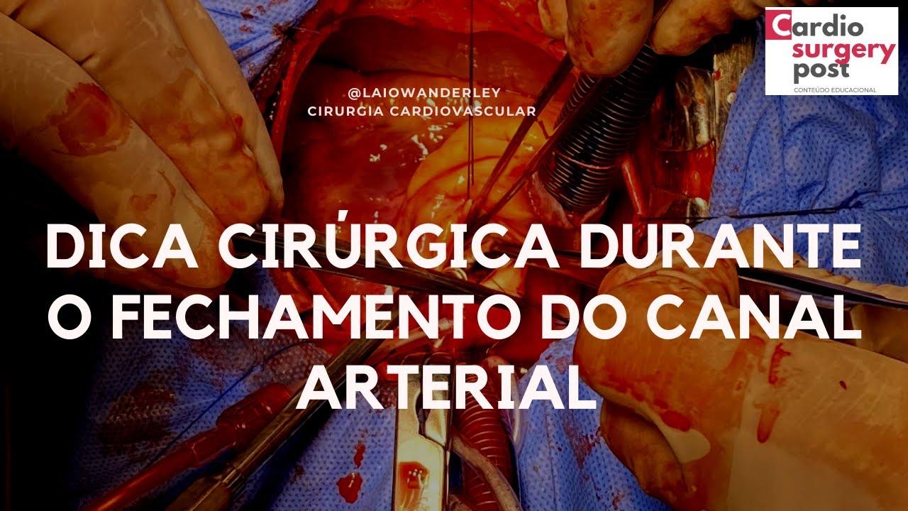 Dica cirúrgica para o fechamento seguro do canal arterial: algo simples e efetivo.