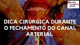 Dica cirúrgica para o fechamento seguro do canal arterial: técnica simples e efetiva!