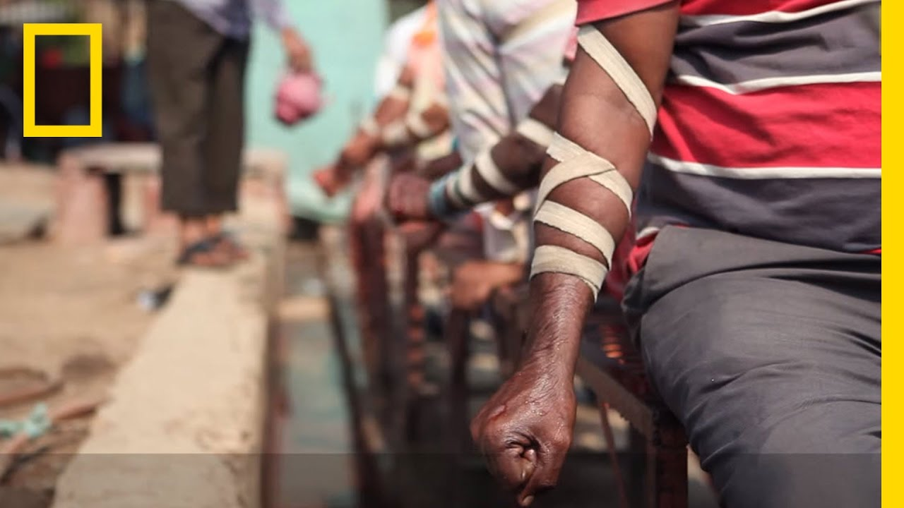 bloodletting psoriasis kezelése