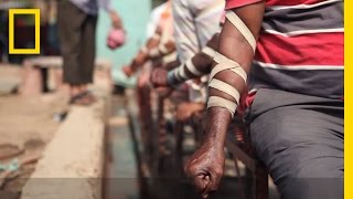 WATCH: The Practice of Bloodletting in New Delhi | National Geographic