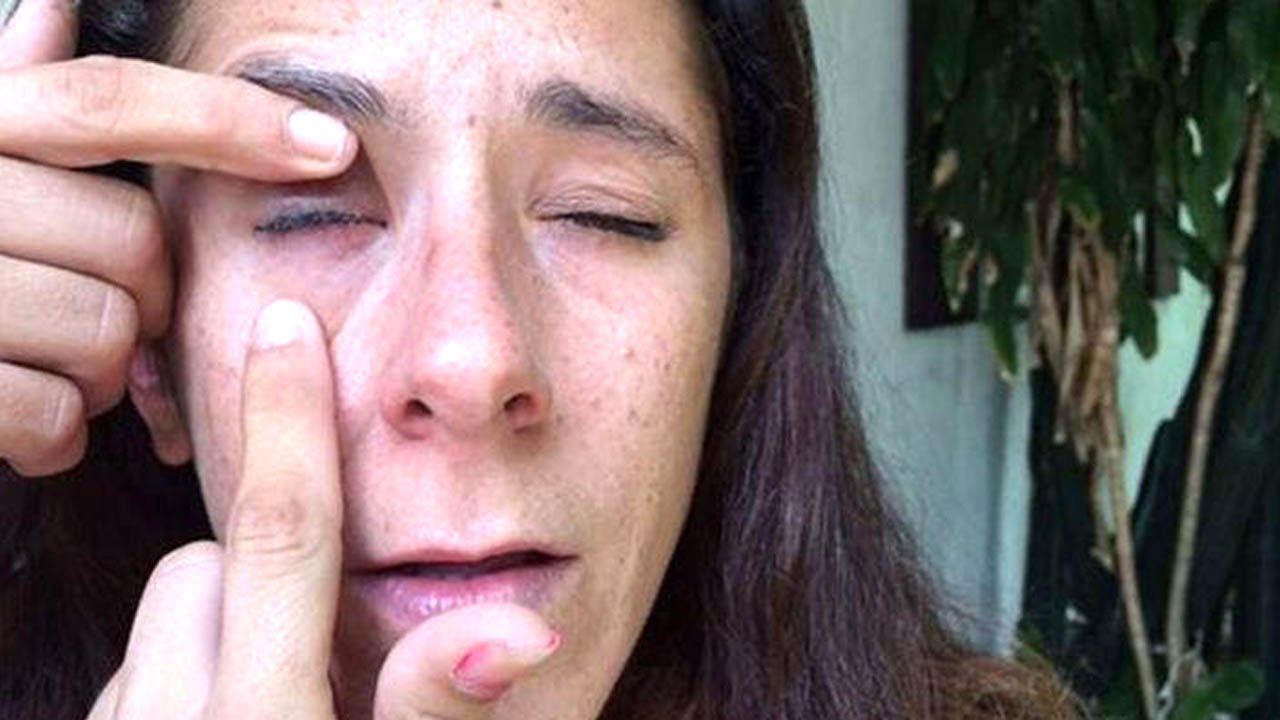 This Woman Accidentally Super-Glued Her Eye Shut