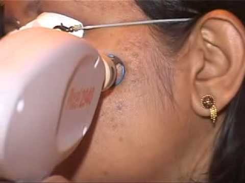 Scar treatment using Alma Pixel 2940 - YouTube