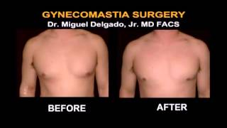 Gynecomastia Before and After Pictures - San Francisco and Marin County | California