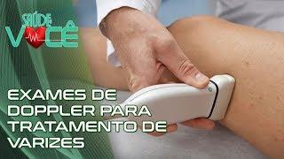 Dos inferiores ultrassonografia membros de veias