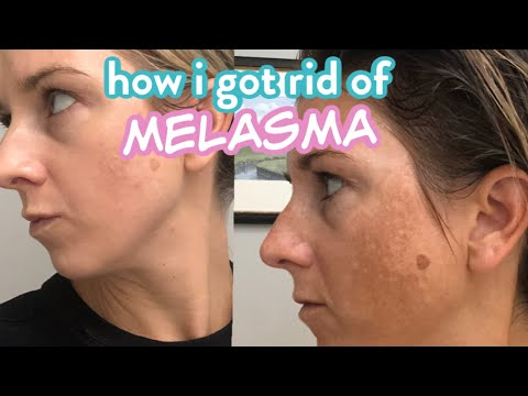How I Got Rid of my Melasma aka Pregnancy Dark Spot from YouTube · Duration:  9 minutes 56 seconds