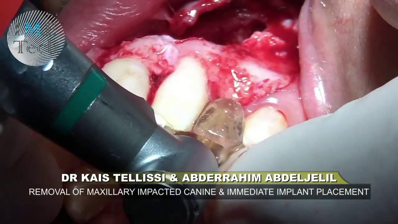 Hd Extraction Of An Impacted Canine Tooth Youtube