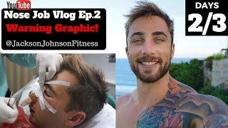 Nose Job Vlog Ep.2   Warning Graphic & Emotional Day 2/3   Jackson Johnson Fitness
