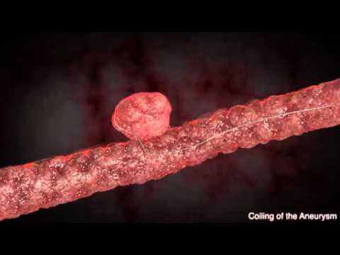 Brain Aneurysms Animation 5