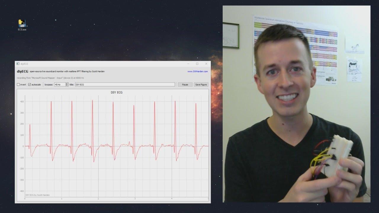 DIY ECG - 1 op-amp version - YouTube