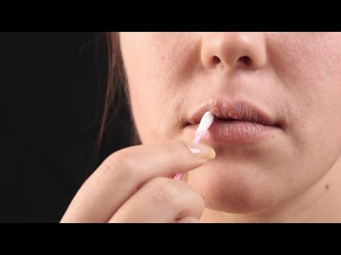 Fever blister treatment for your lips & How I use witch hazel to treat cold sores fast