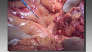 Totally Stapled Bowel Resection and Anastomosis - Surgery