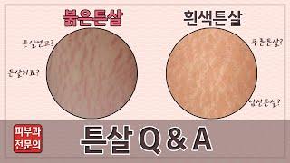 피부과 전문의가 알려주는 튼살에 대한 궁금증(튼살Q&a…