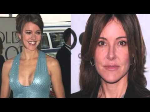 Christa Miller Before and After Plastic Surgery Photos