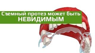 Съемные зубные протезы: съемный зубной протез-невидимка INVISIBLE(Съемный зубной протез Квадротти Clear показан при частичной адентии. Является альтернативой бюгельным, акрил..., 2015-10-07T21:53:31.000Z)