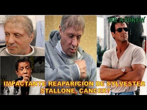 IMPACTANTE ASPECTO DE SYLVESTER STALLONE, CANCER? - MISTER ANDREW.