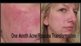 Dry Acne Prone Skin/ Rosacea Skin Care Routine! One Month Transformation!