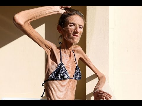 5 Most Extreme Cases Of Anorexia