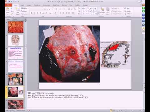 Medical School Pathology, 2013 Season, Session #6: Hemodynamic Disorders I