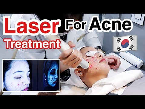 LASER Treatment For Acne In Korea