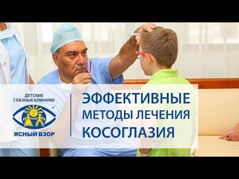 Лечение косоглазия. 🙆 Эффективные методы лечения косоглазия у детей и взрослых. Ясный Взор