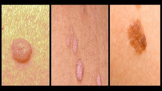 Skin tag vs Warts vs Mole removal on face, neck, hands, feet at home fast and naturally overnight