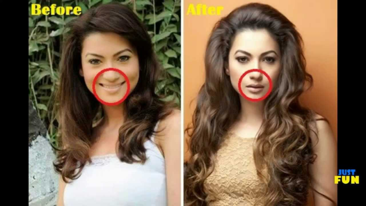 bollywood divas and their plastic surgeries | images before and
