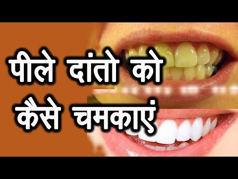 how to clean yellow teeth home remedies