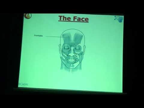 Basics of Botulinum toxin injection (upper face)-Dr Ahmed Sadek