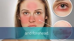 hqdefault - Acne Rosacea Or Lupus