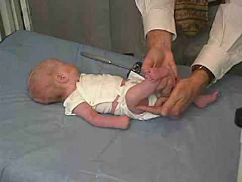 Neurological examination of an infant