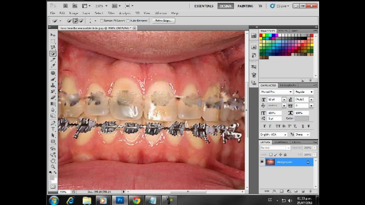 blanquear dientes cs5 remover frenillos o brackets - YouTube 919c45479ef2