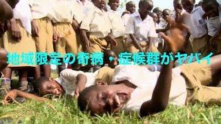 特定の国、民族にしか存在しない奇病・症候群!日本からもまさかのランクイン!?《驚愕》 地方病 検索動画 12