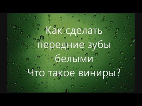 Виниры в Иркутске цена