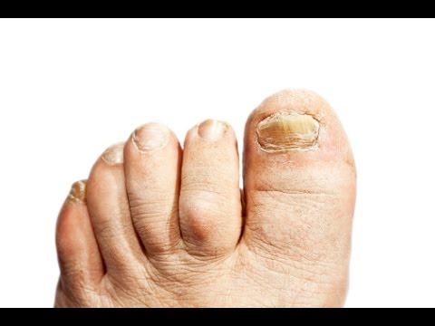 How to Treat and Beat Toe Nail Fungus